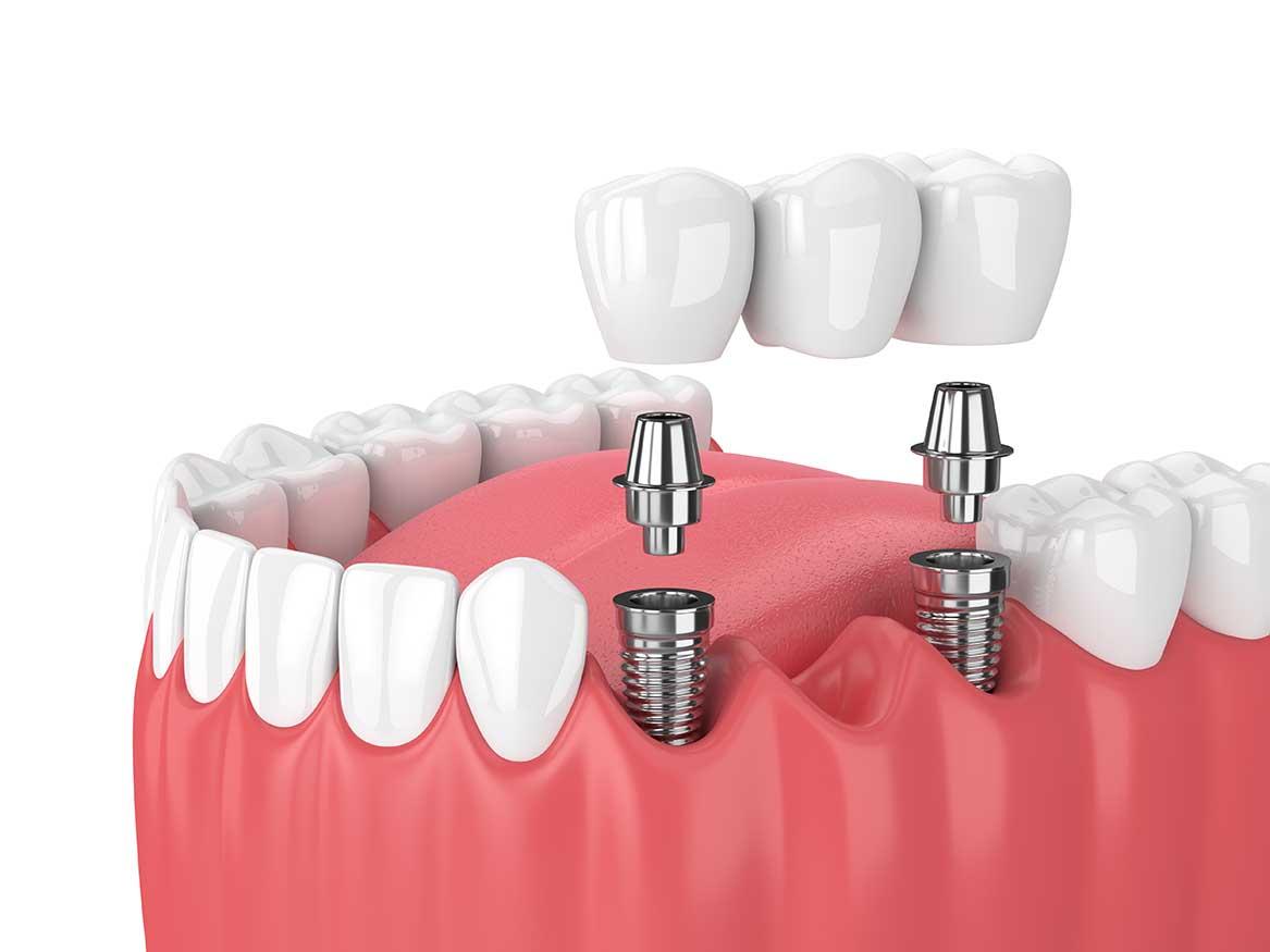 Centre médical dentaire : Un centre médical apprécié ?