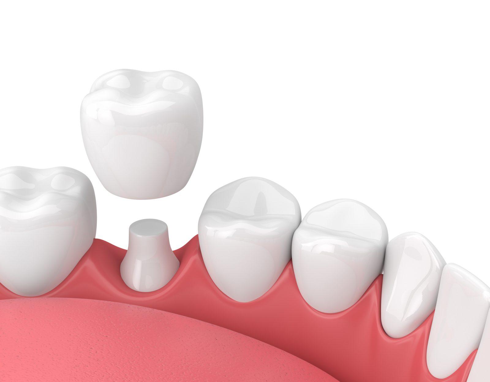 Implant dentaire : une dent remarquée ?